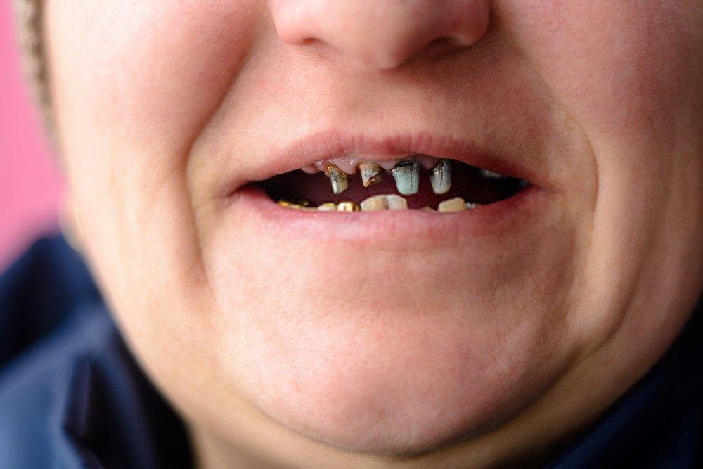 mulher com os dentes podres caindo