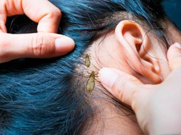 menina de cabelo azul cheia de piolhos