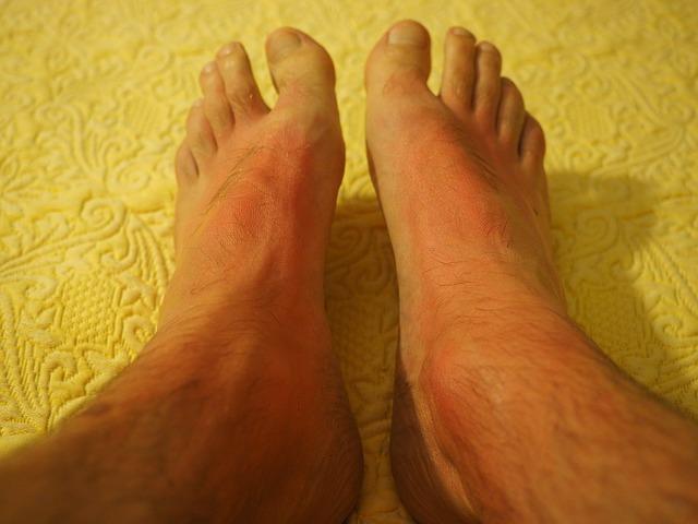 queimadura solar nos pés